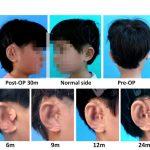 urechi
